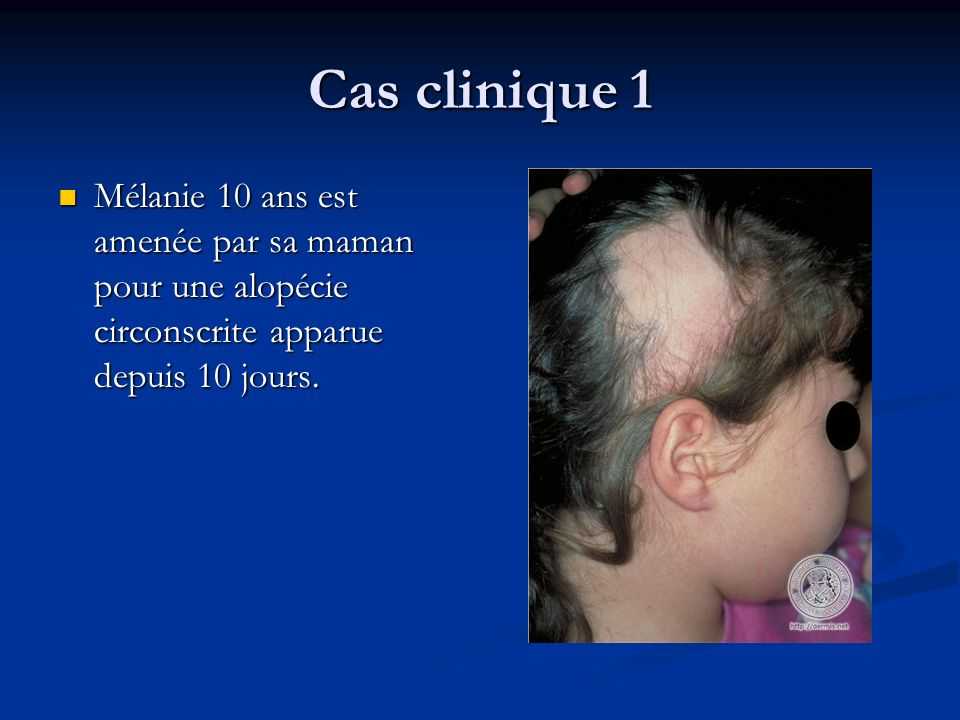 Cas clinique 1Mélanie 10 ans est amenée par sa maman pour une alopécie circonscrite apparue depuis 10 jours.