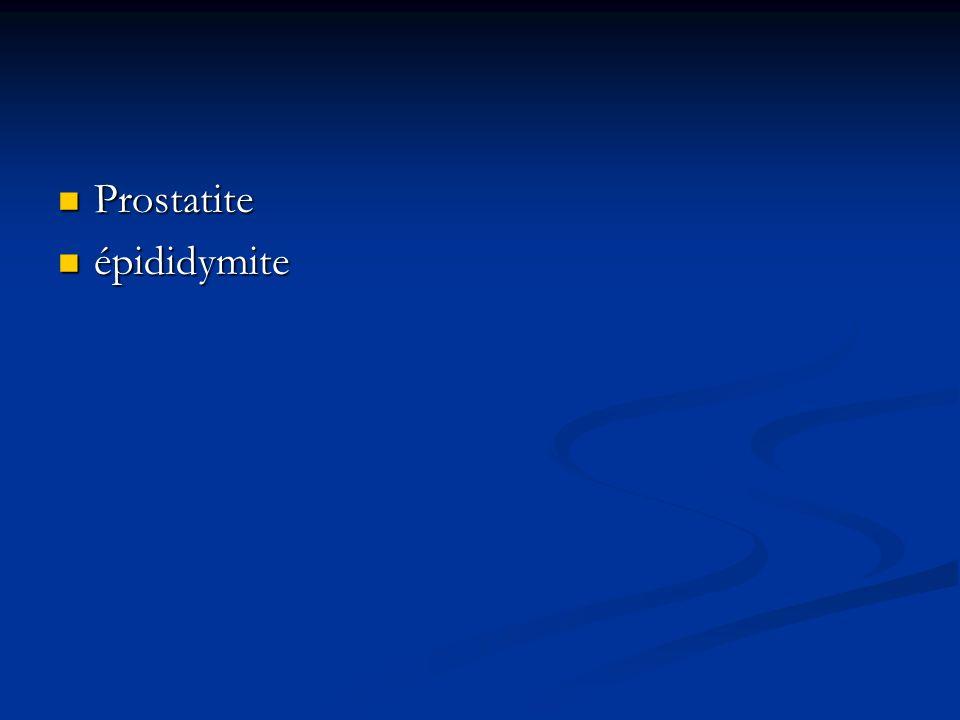 Prostatite épididymite