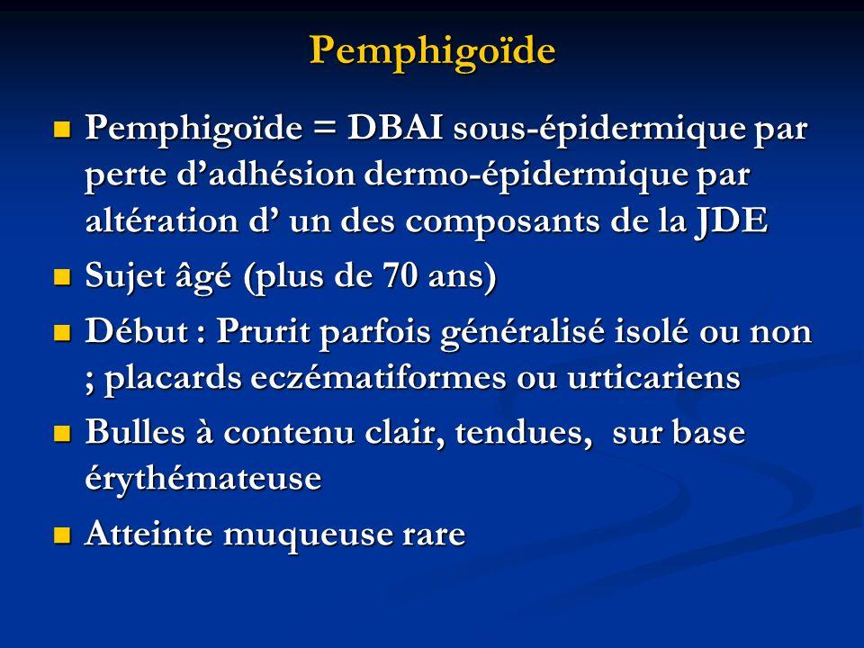 Pemphigoïde Pemphigoïde = DBAI sous-épidermique par perte d'adhésion dermo-épidermique par altération d' un des composants de la JDE.