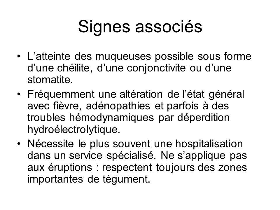 Signes associés L'atteinte des muqueuses possible sous forme d'une chéilite, d'une conjonctivite ou d'une stomatite.