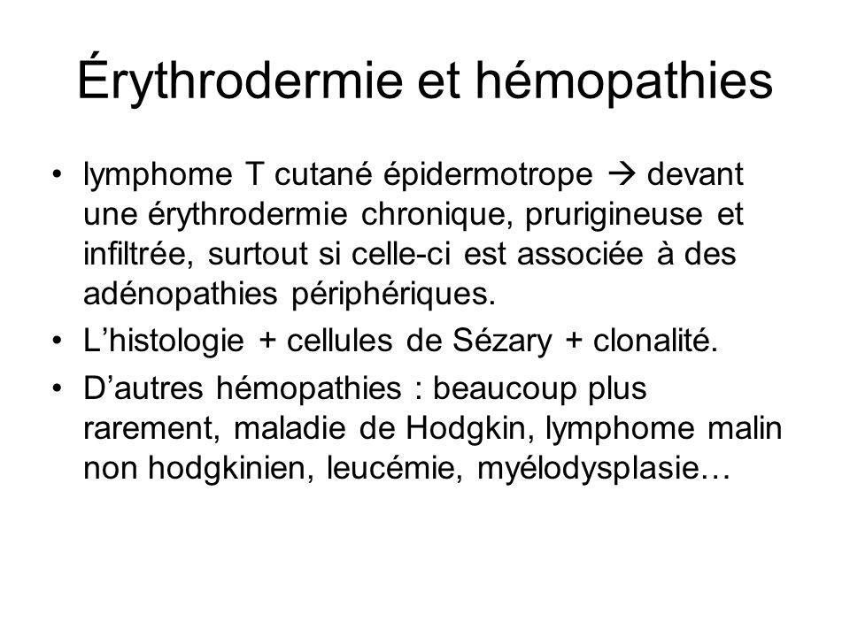 Érythrodermie et hémopathies