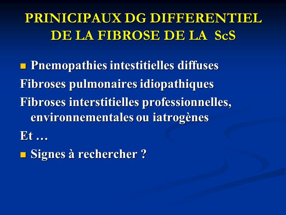 PRINICIPAUX DG DIFFERENTIEL DE LA FIBROSE DE LA ScS