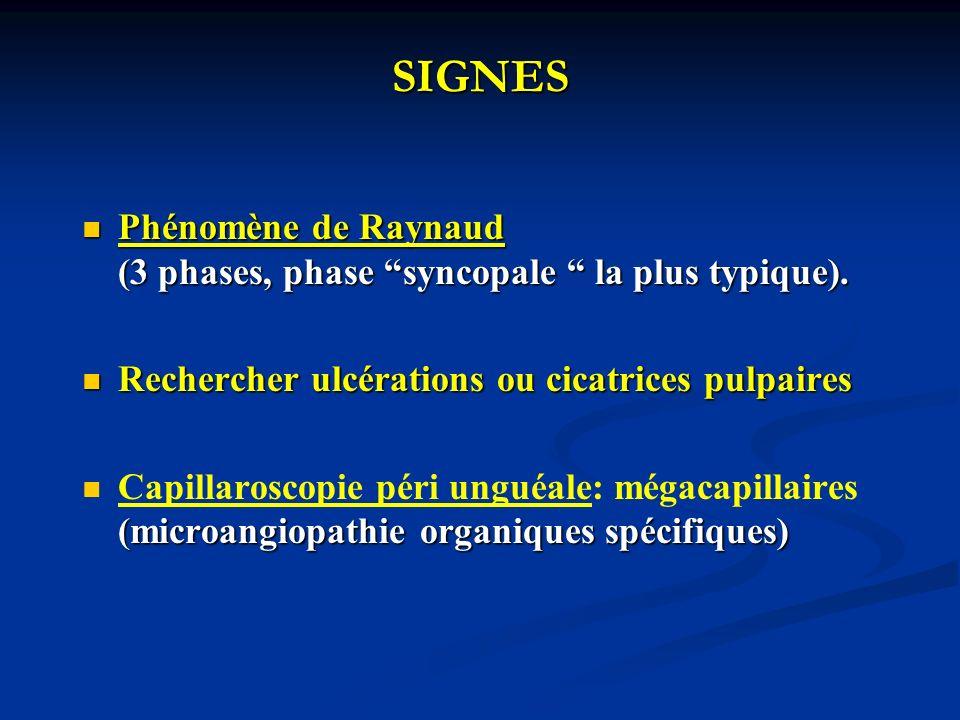 SIGNES Phénomène de Raynaud (3 phases, phase syncopale la plus typique).