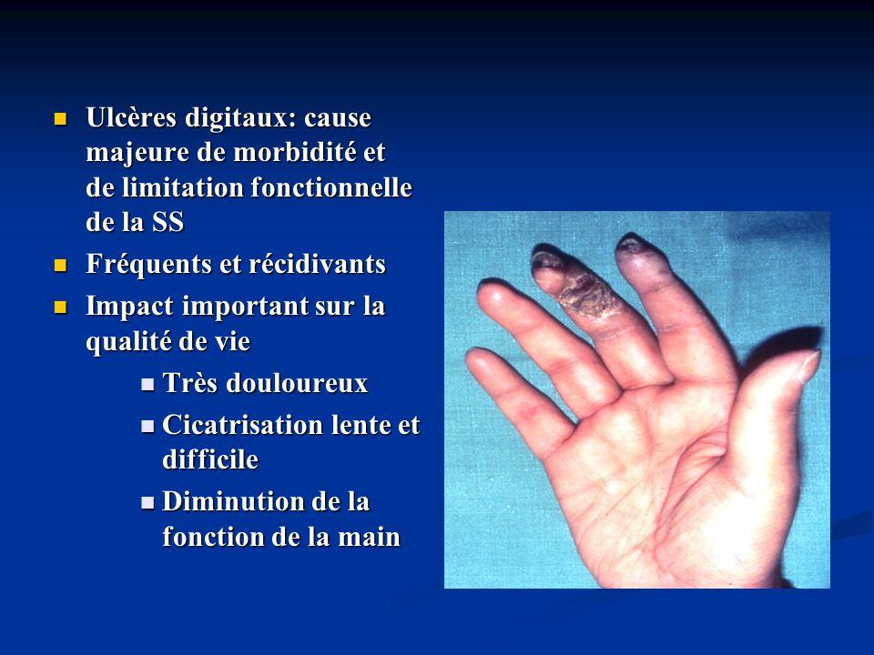 Ulcères digitaux: cause majeure de morbidité et de limitation fonctionnelle de la SS