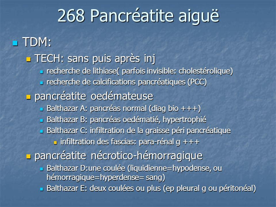 268 Pancréatite aiguë TDM: TECH: sans puis après inj
