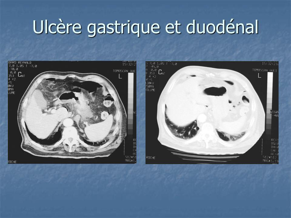 Ulcère gastrique et duodénal