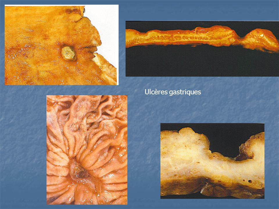 Ulcères gastriques