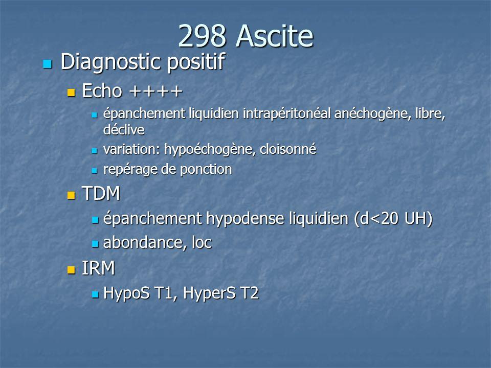 298 Ascite Diagnostic positif Echo ++++ TDM IRM
