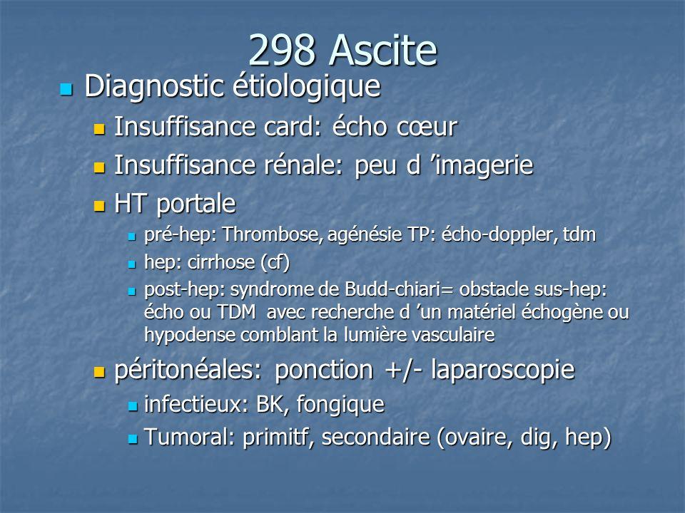 298 Ascite Diagnostic étiologique Insuffisance card: écho cœur