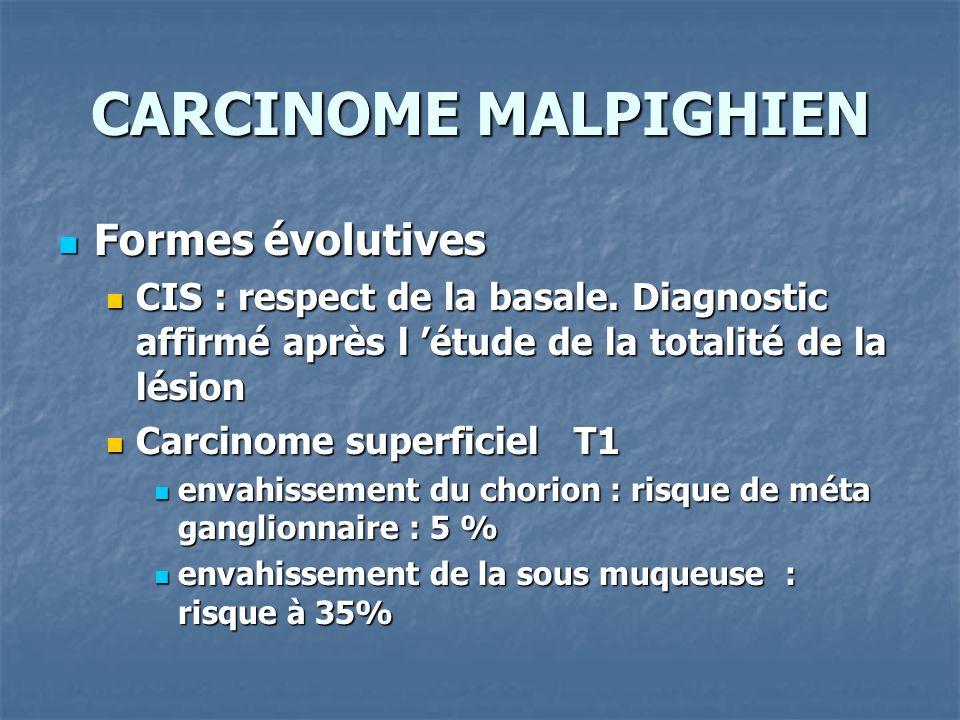 CARCINOME MALPIGHIEN Formes évolutives