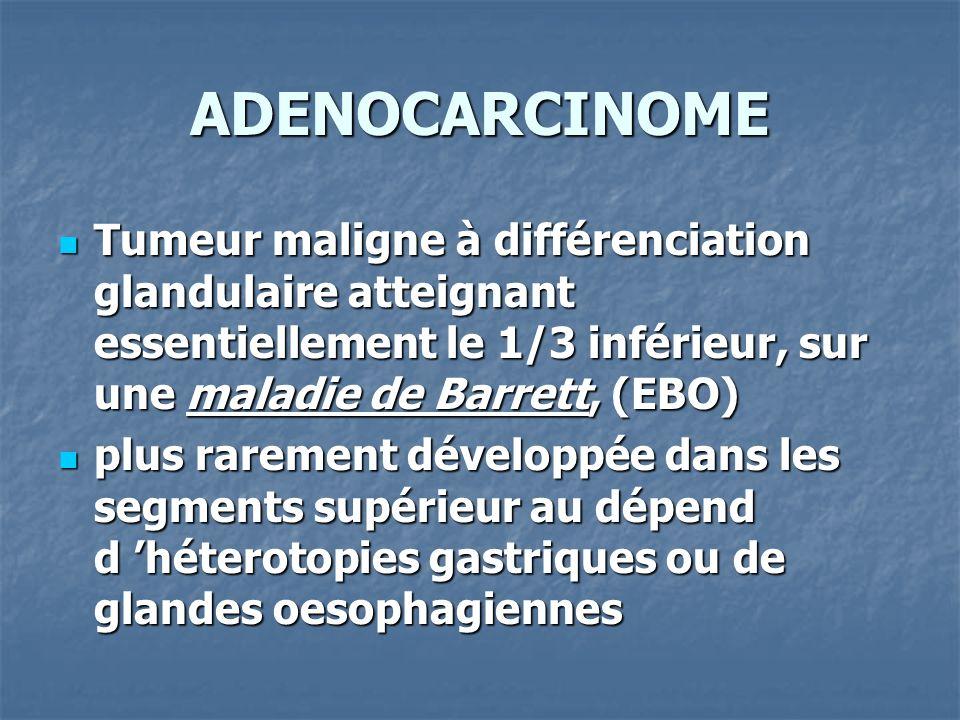 ADENOCARCINOME Tumeur maligne à différenciation glandulaire atteignant essentiellement le 1/3 inférieur, sur une maladie de Barrett, (EBO)