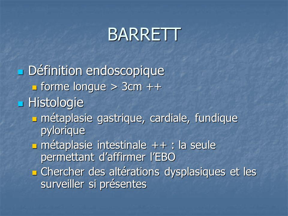 BARRETT Définition endoscopique Histologie forme longue > 3cm ++