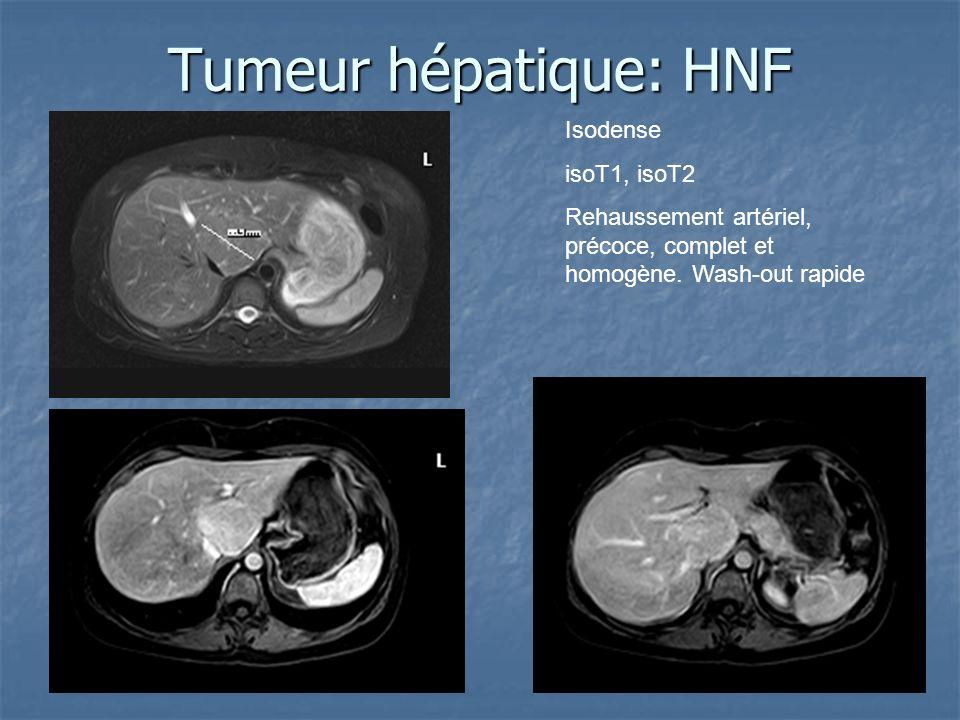 Tumeur hépatique: HNF Isodense isoT1, isoT2