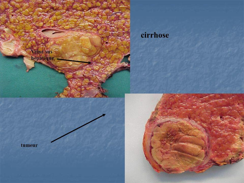 cirrhose Veine sus hépatique tumeur