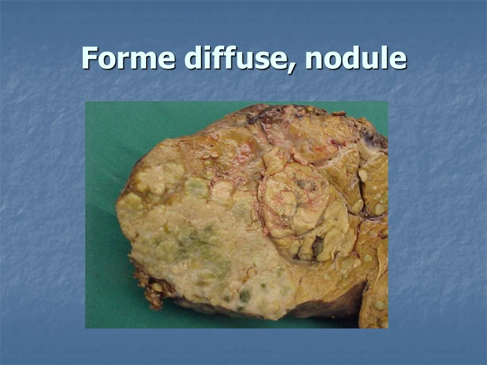 Forme diffuse, nodule