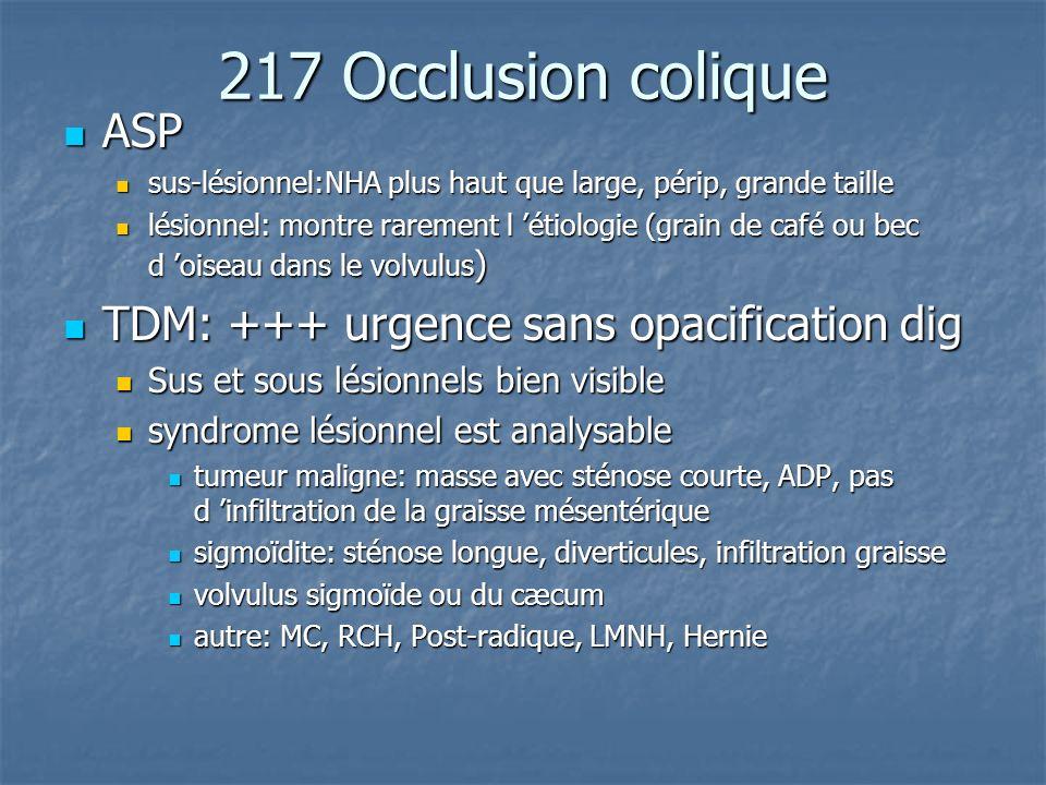 217 Occlusion colique ASP TDM: +++ urgence sans opacification dig