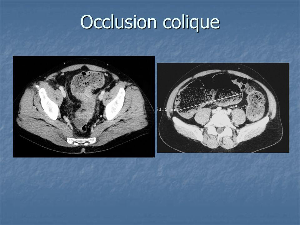 Occlusion colique