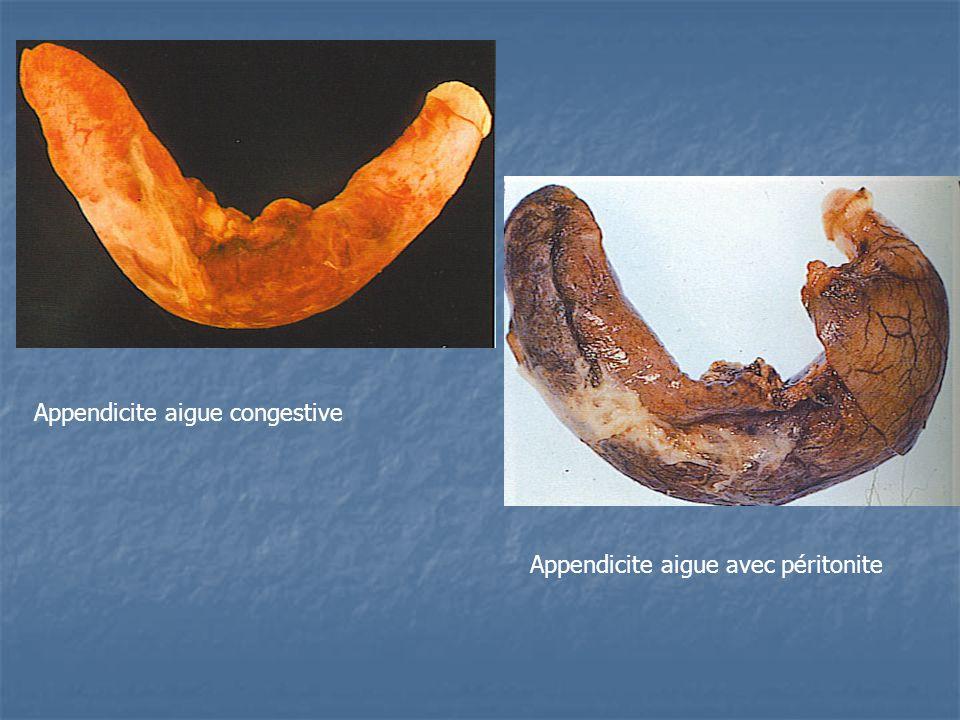 Appendicite aigue congestive