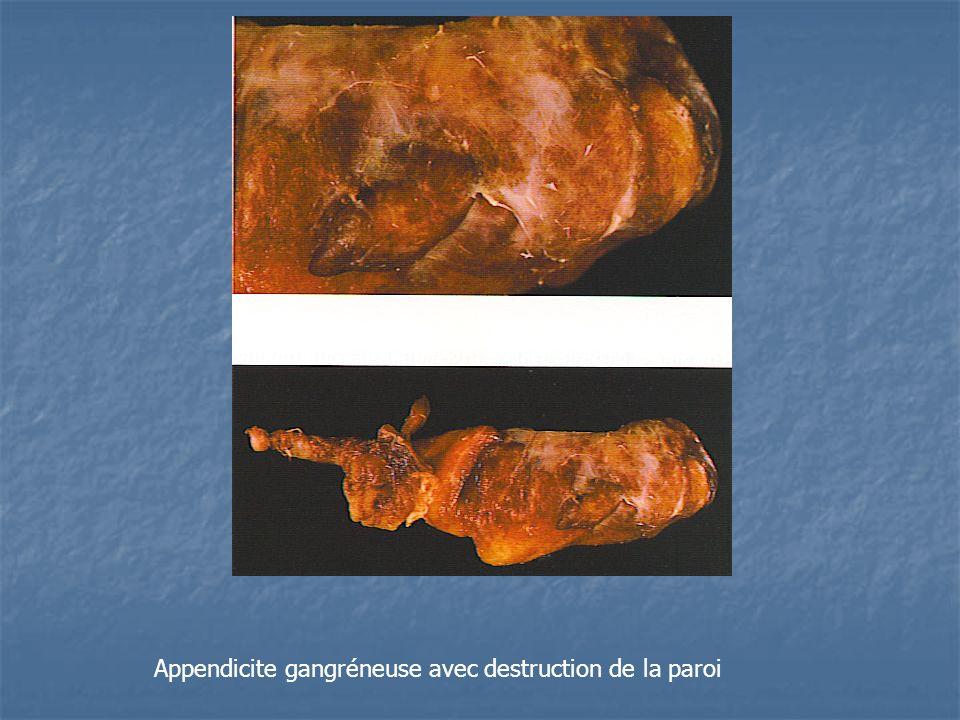 Appendicite gangréneuse avec destruction de la paroi