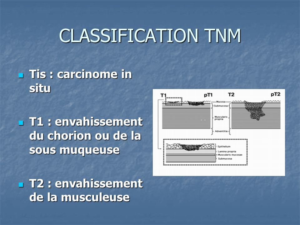 CLASSIFICATION TNM Tis : carcinome in situ