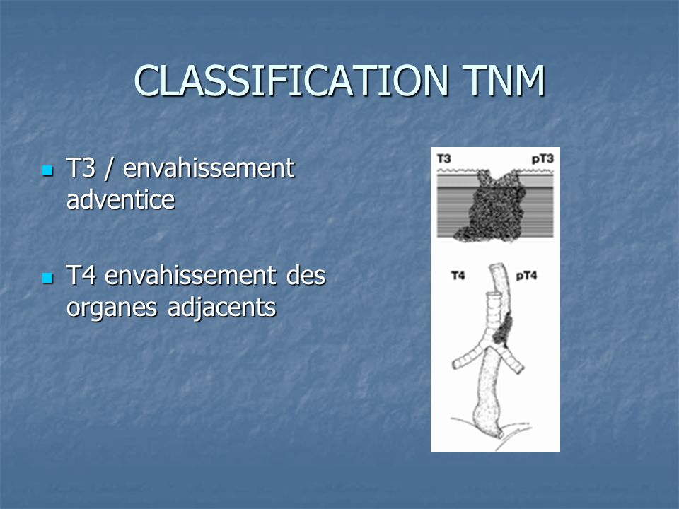CLASSIFICATION TNM T3 / envahissement adventice
