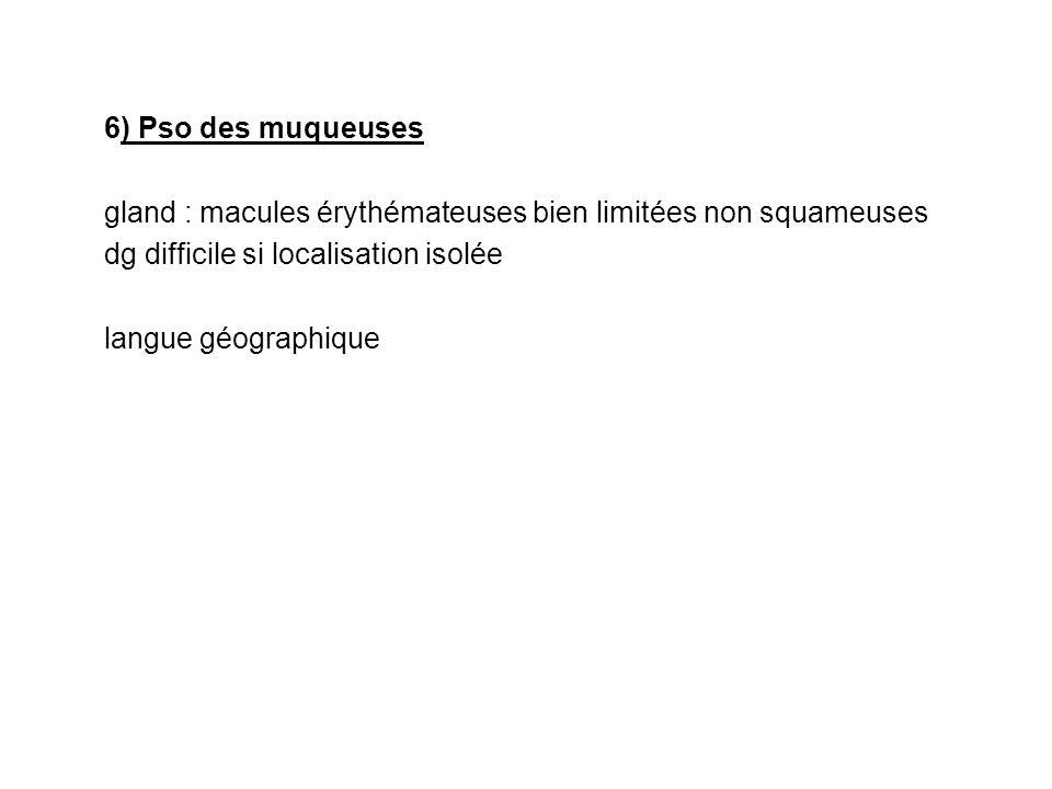 6) Pso des muqueusesgland : macules érythémateuses bien limitées non squameuses. dg difficile si localisation isolée.