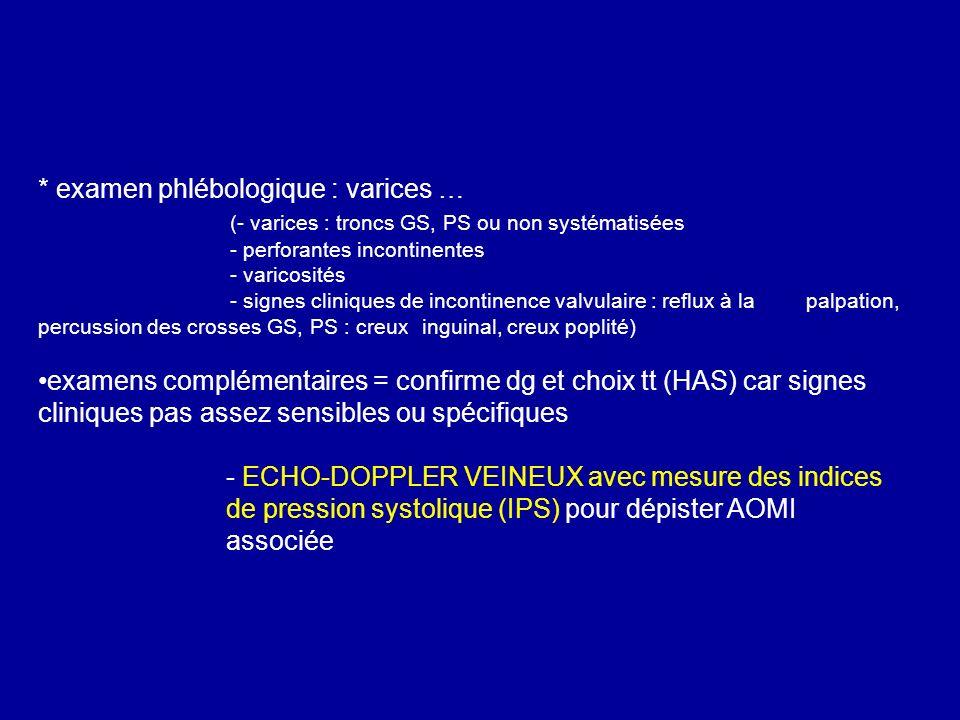 * examen phlébologique : varices …