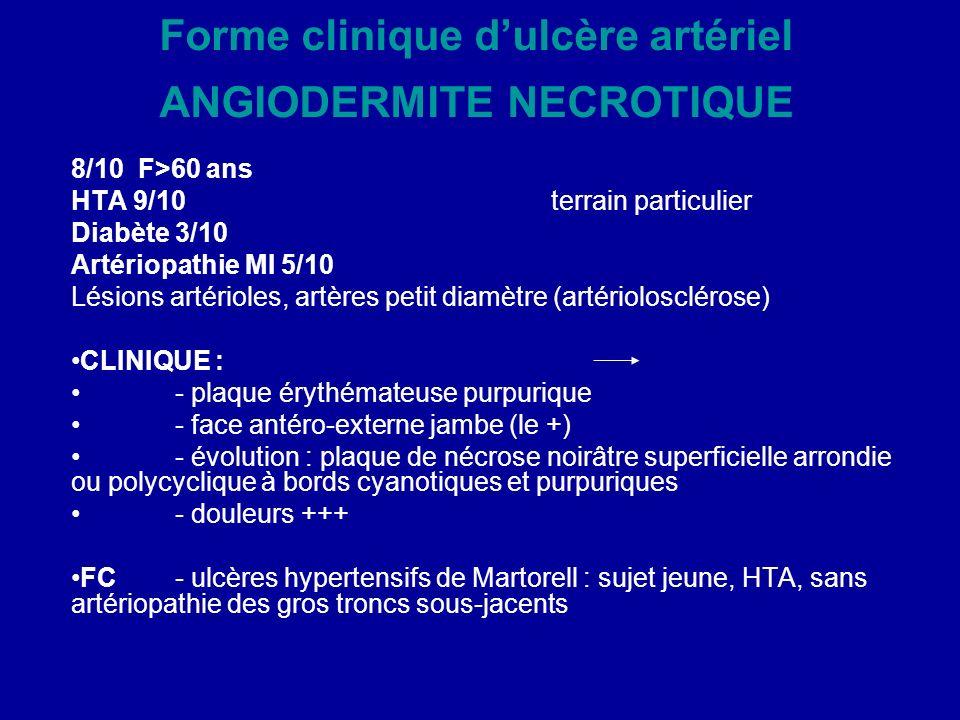 Forme clinique d'ulcère artériel ANGIODERMITE NECROTIQUE