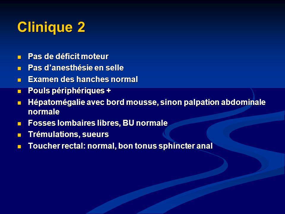 Clinique 2 Pas de déficit moteur Pas d'anesthésie en selle