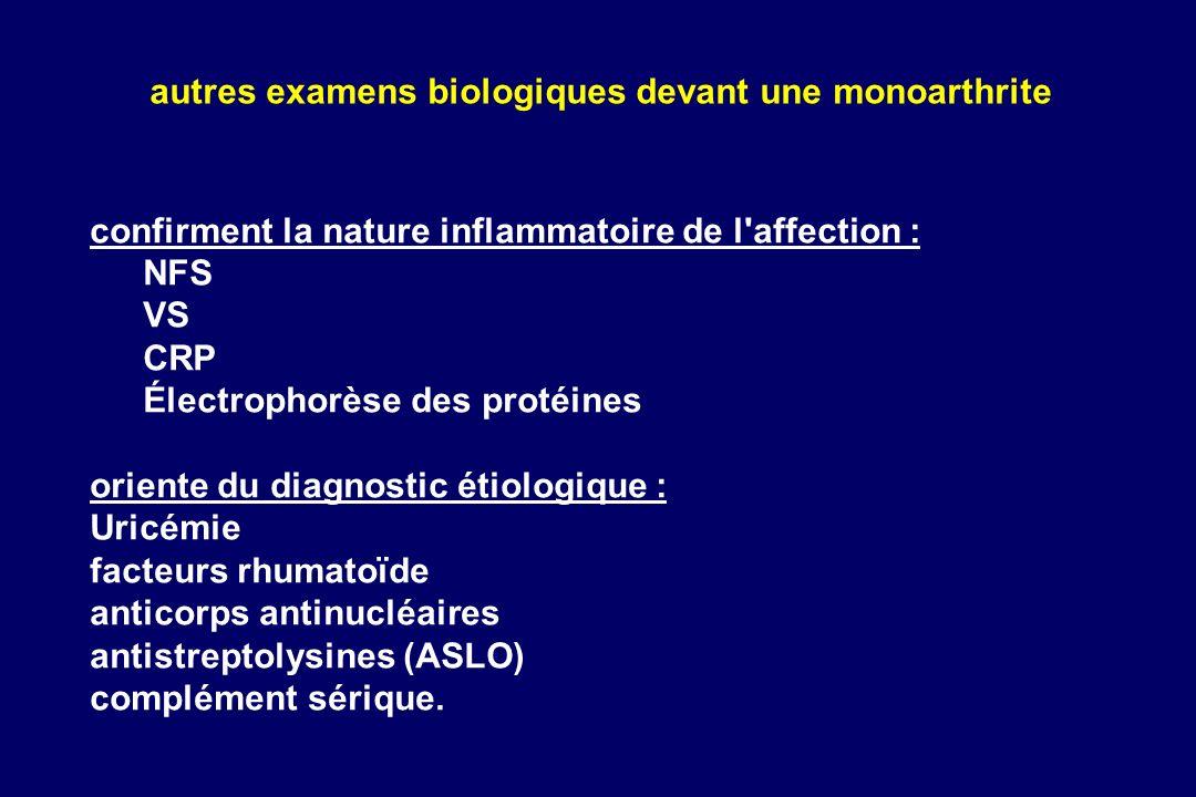 autres examens biologiques devant une monoarthrite