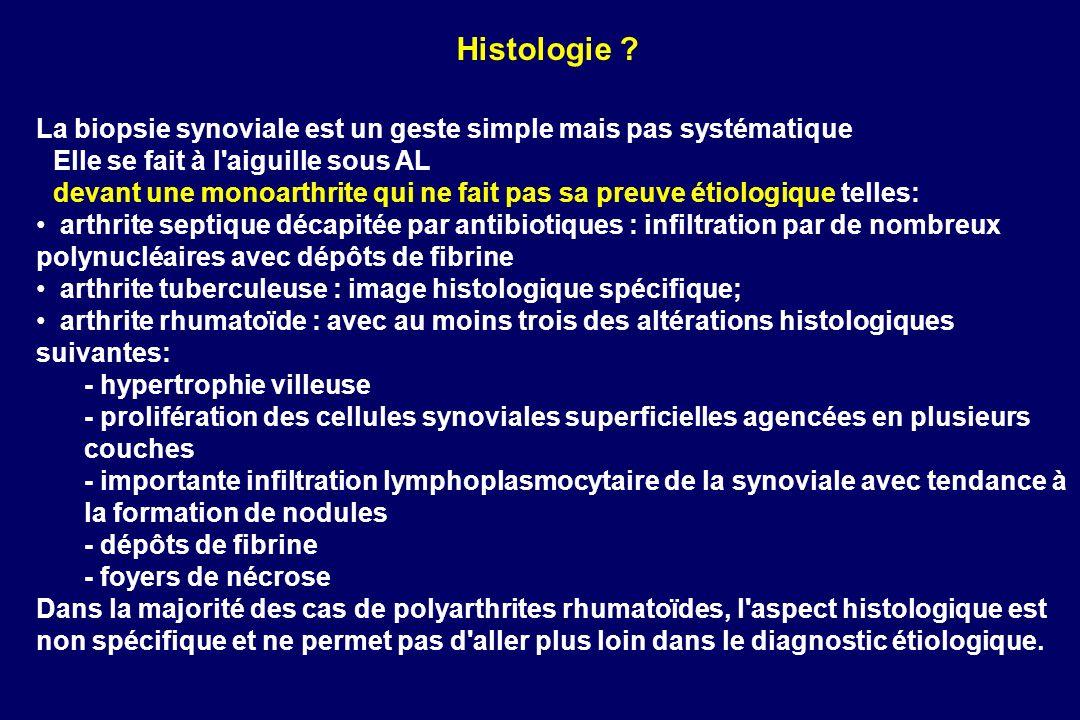 Histologie La biopsie synoviale est un geste simple mais pas systématique. Elle se fait à l aiguille sous AL.