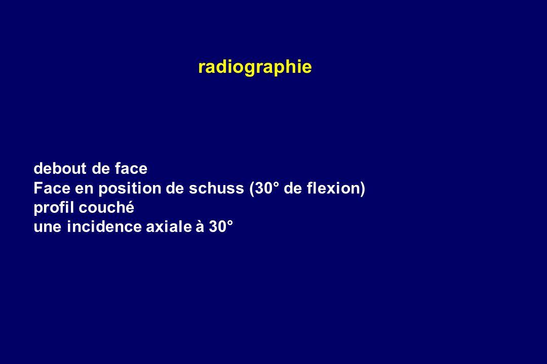 radiographie debout de face