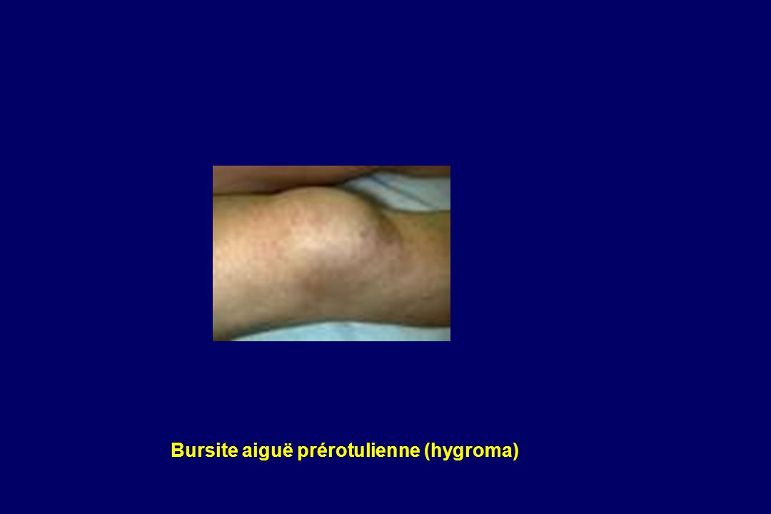 Bursite aiguë prérotulienne (hygroma)