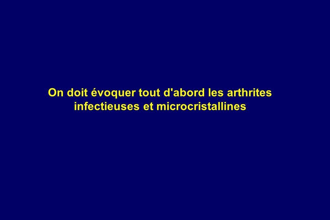On doit évoquer tout d abord les arthrites infectieuses et microcristallines