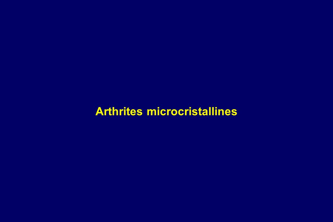 Arthrites microcristallines