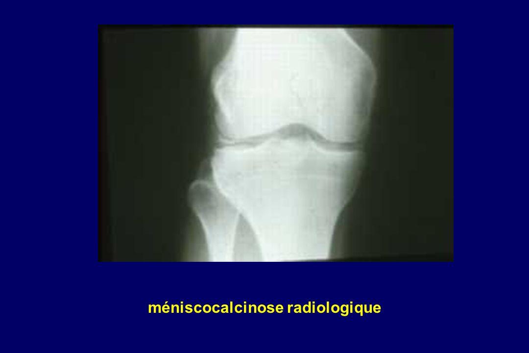 méniscocalcinose radiologique