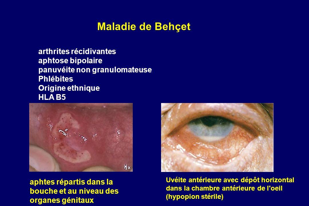 Maladie de Behçet arthrites récidivantes aphtose bipolaire