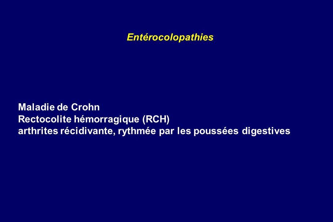 Rectocolite hémorragique (RCH)