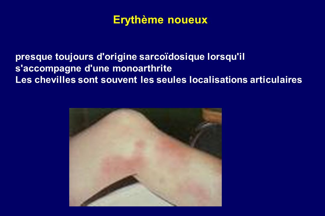 Erythème noueux presque toujours d origine sarcoïdosique lorsqu il s accompagne d une monoarthrite.