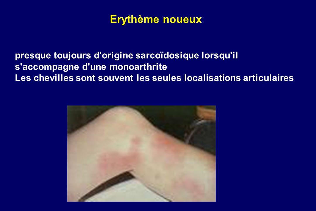 Erythème noueuxpresque toujours d origine sarcoïdosique lorsqu il s accompagne d une monoarthrite.
