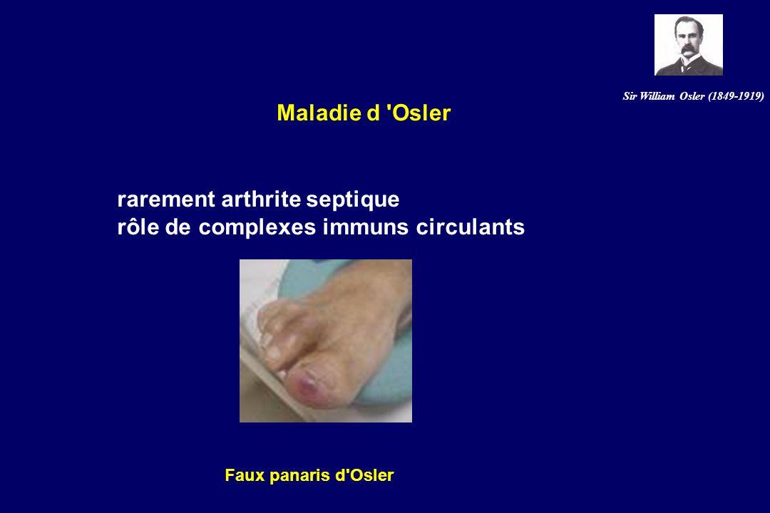 rarement arthrite septique rôle de complexes immuns circulants