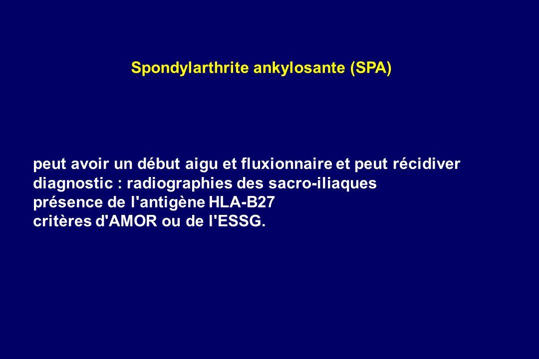 Spondylarthrite ankylosante (SPA)