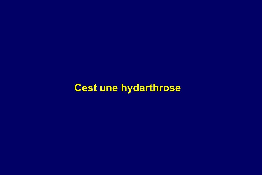 Cest une hydarthrose 1