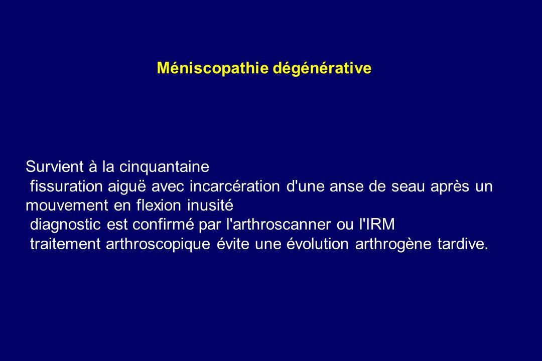 Méniscopathie dégénérative