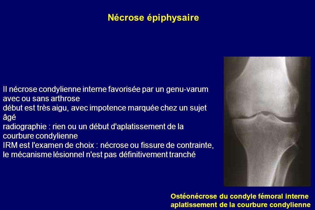 Nécrose épiphysaireIl nécrose condylienne interne favorisée par un genu-varum avec ou sans arthrose.