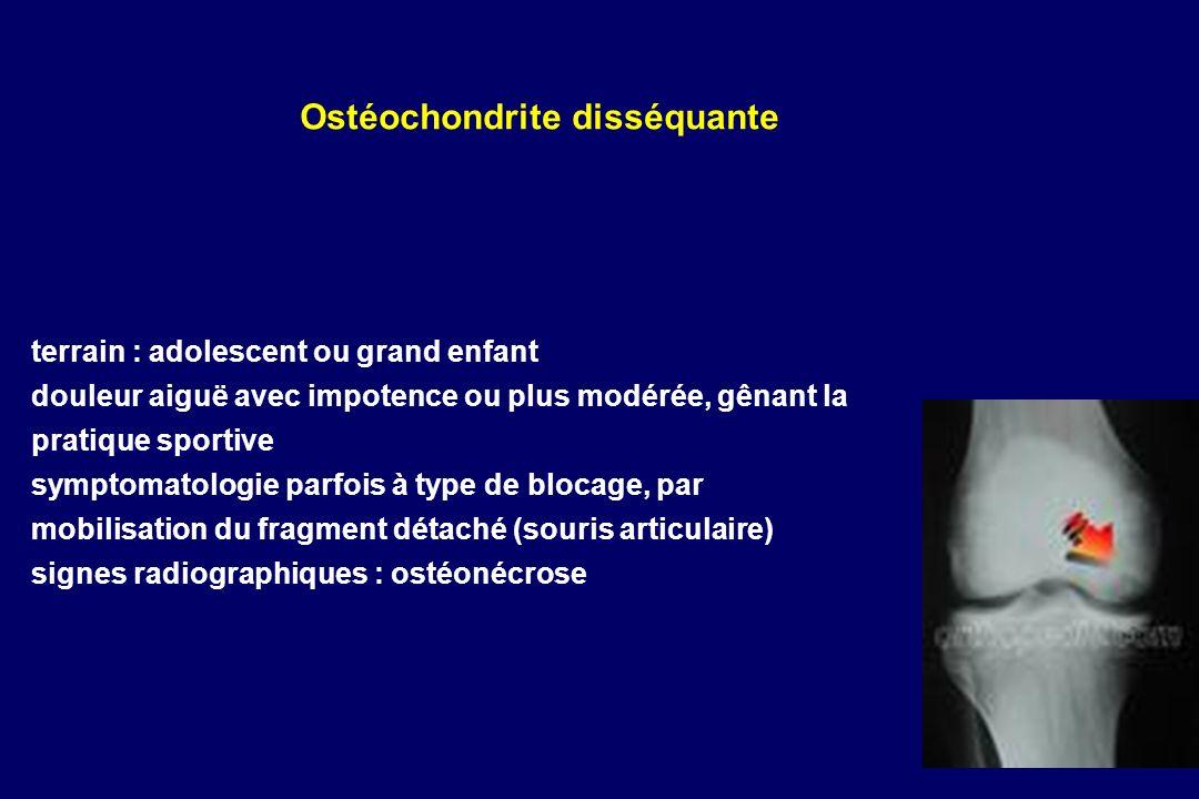 Ostéochondrite disséquante