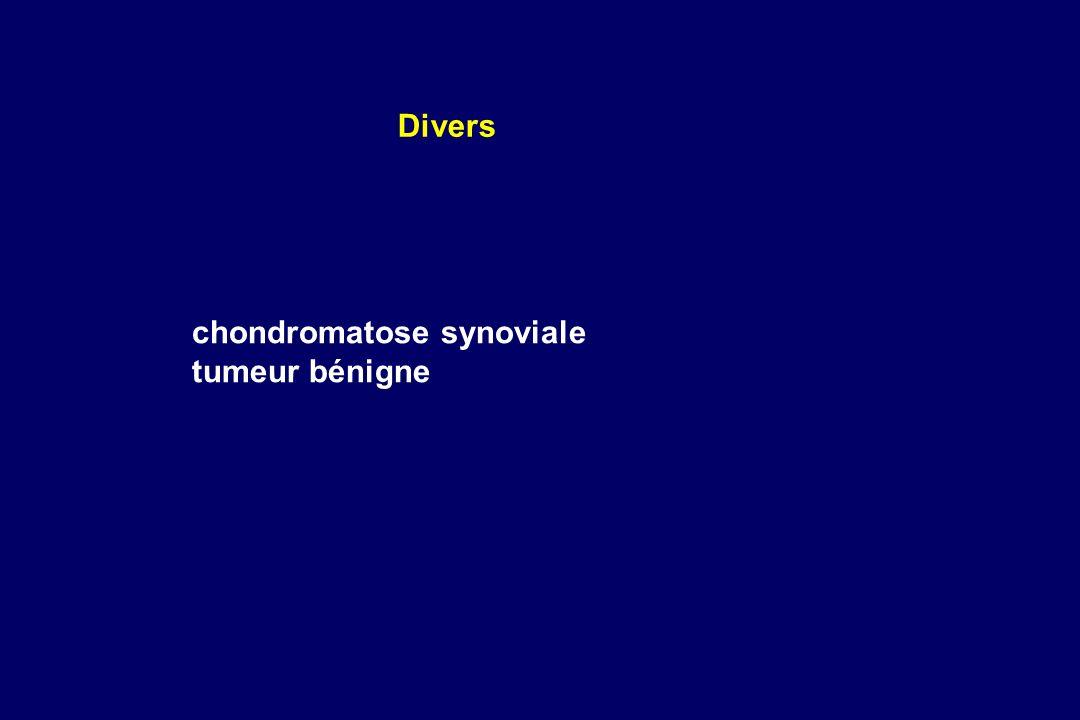 chondromatose synoviale tumeur bénigne