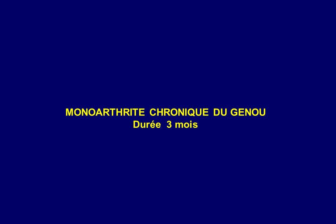 MONOARTHRITE CHRONIQUE DU GENOU