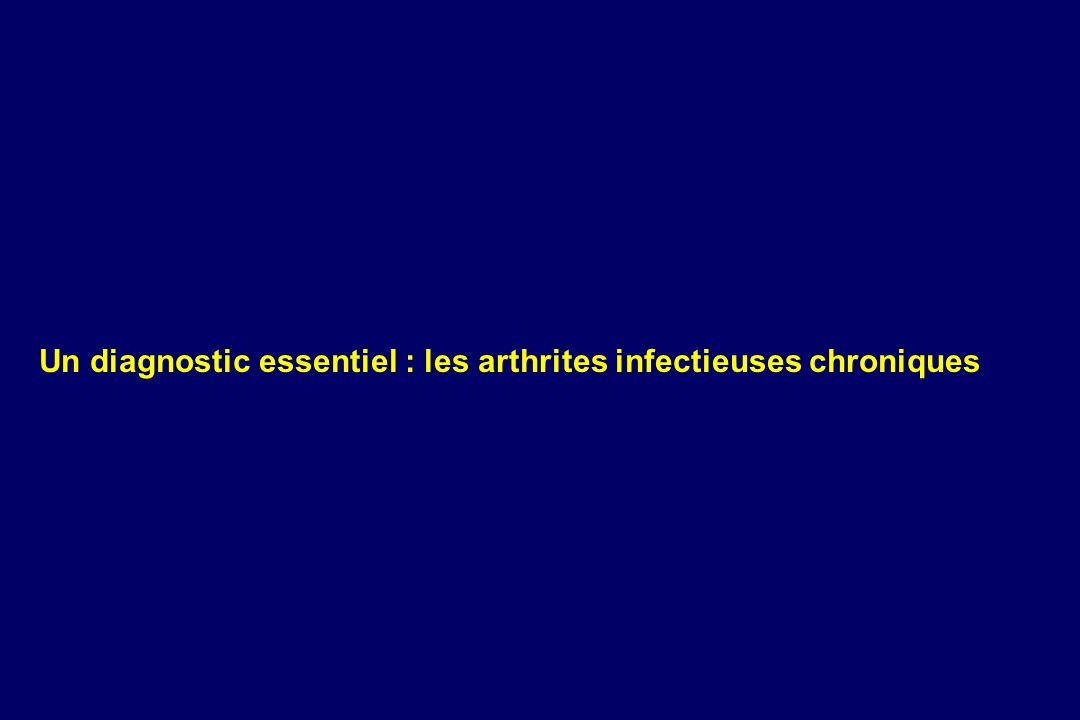 Un diagnostic essentiel : les arthrites infectieuses chroniques
