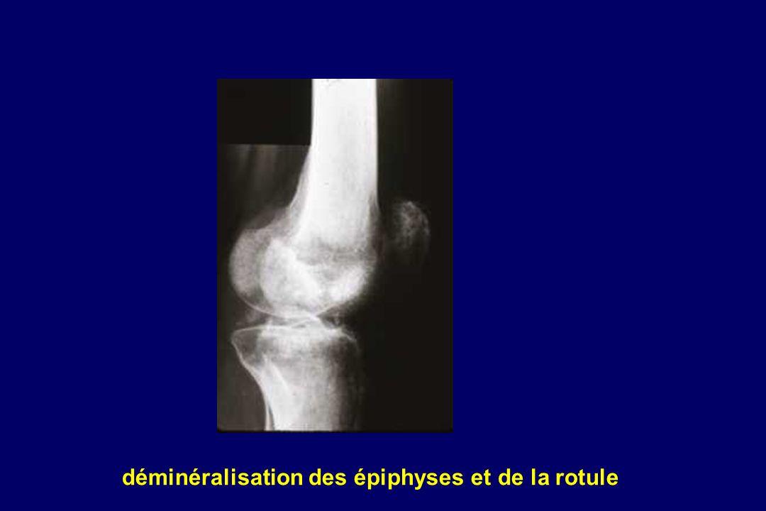 déminéralisation des épiphyses et de la rotule